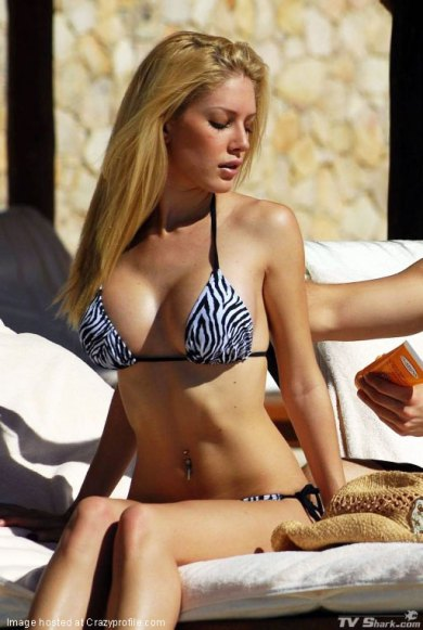 "Heidi Montag Now (A.10.PSP. ""After 10 Plastic Surgery Procedures"")"